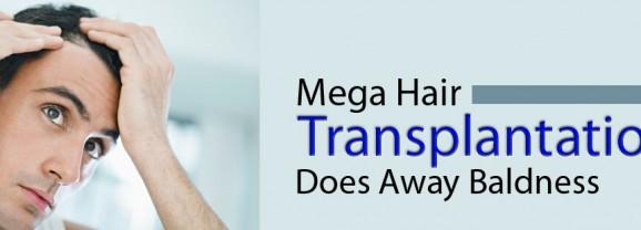 Mega Hair Transplantation Does Away Baldness