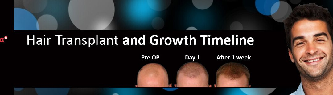 Hair Transplant and Growth Timeline