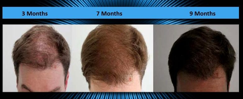 What Kind of Hair Transplant is Right for You?