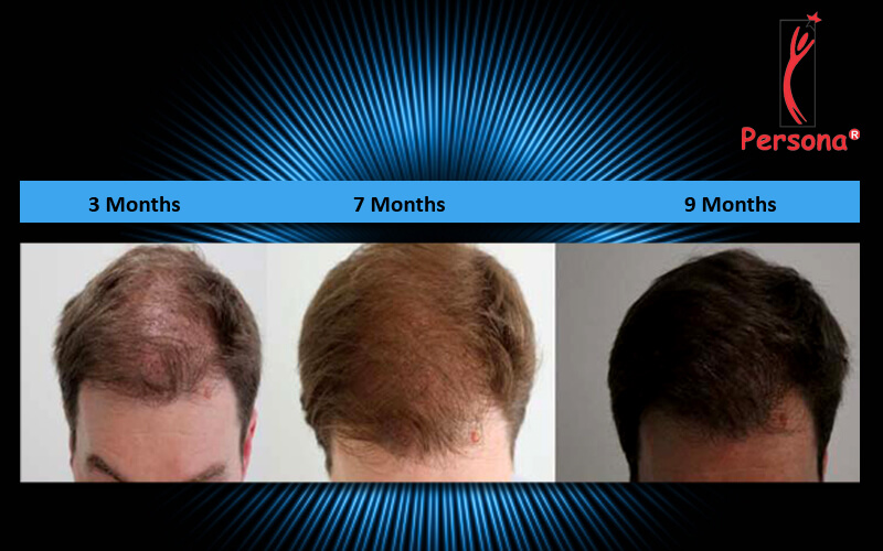 Hair transplant growth