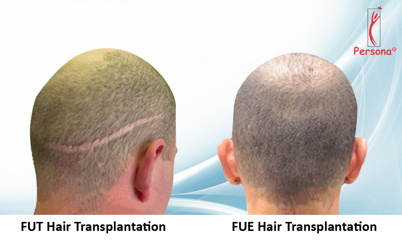 Difference between FUT and FUE