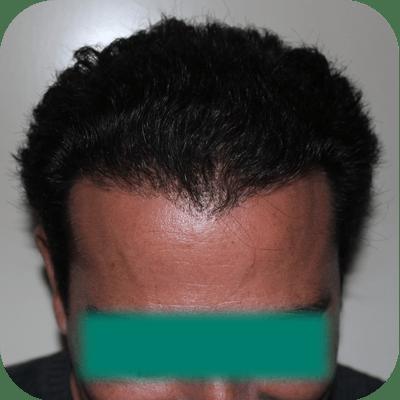 mega hair transplant delhi