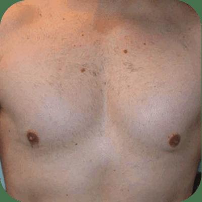 Body hair transplant